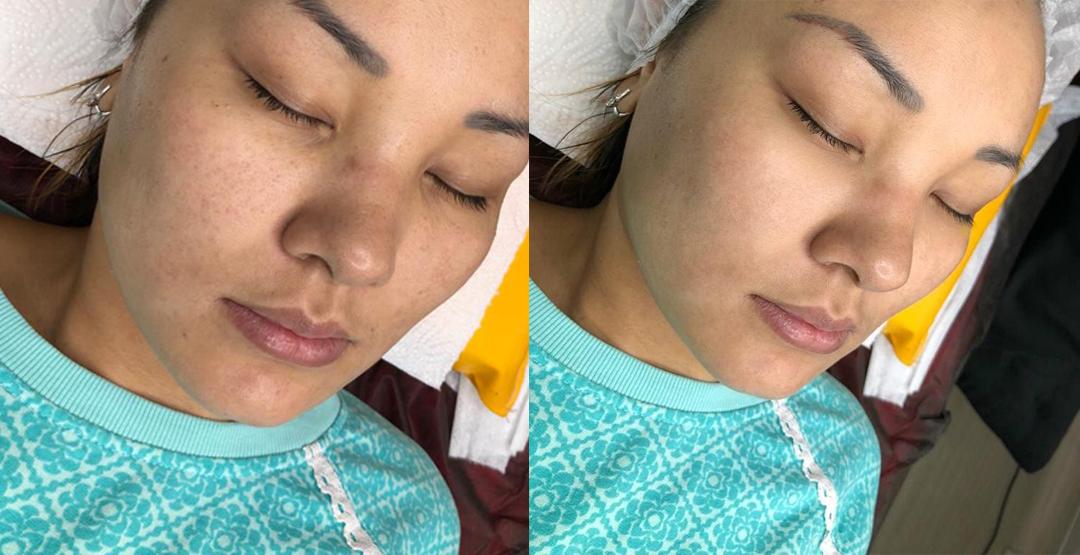 Комплекс процедур по уходу за кожей лица от мастера Ольги Жикеновой