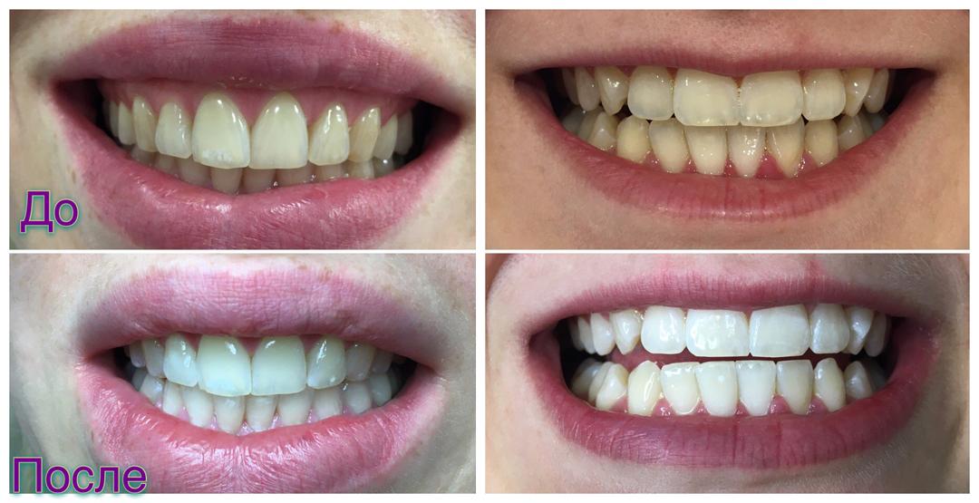 Отбеливание зубов в салоне красоты «Стиляги»